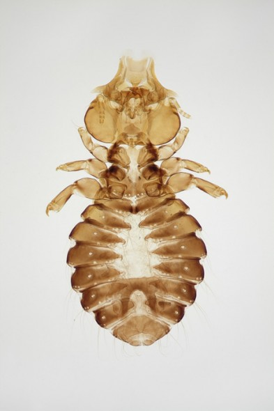 Head and neck louse (female)