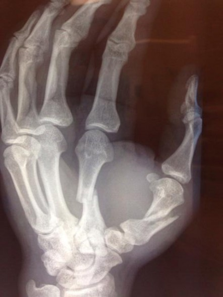 Mark Hunt's fractured hand