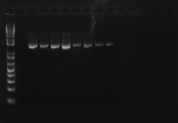 Clubmoss DNA isolated at Te Papa's new DNA lab. DNA is stained with a dye that enables us to see it under UV light.