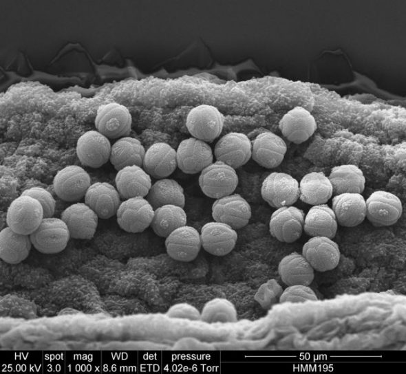 Black and white photo of pollen