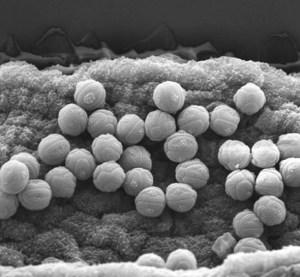 myosotis-aff-pulvinaris-opt